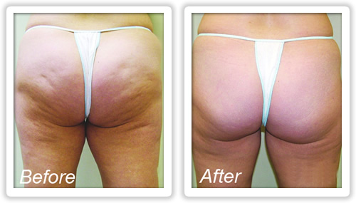 How to Get Rid of Cellulite Quite simple, But Profitable Remedy Displays Benefits in about three Occasions photo 1